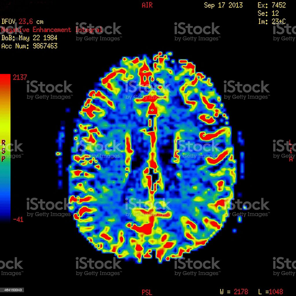 MRI scan showing a normal brain stock photo