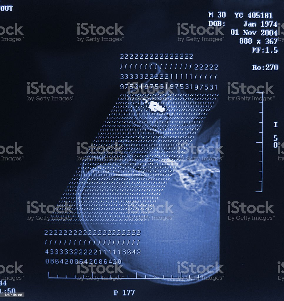 CT Scan Sinus Slice map royalty-free stock photo