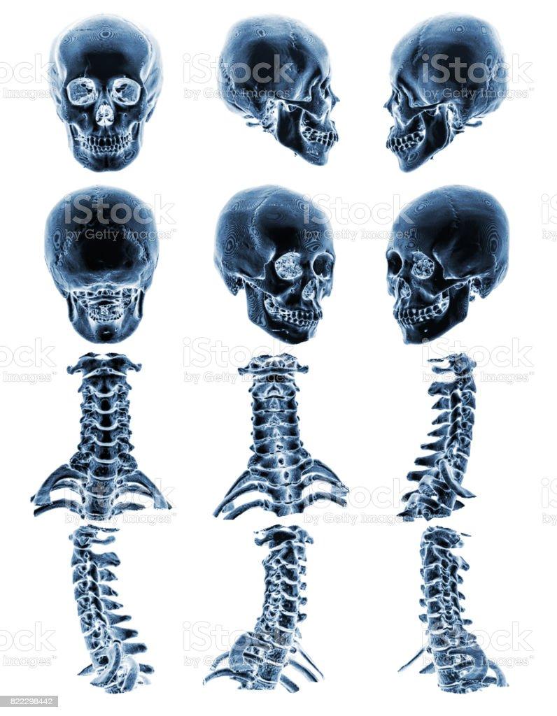 Fotografía de Tc Con Grafica 3d Mostrar Normal Humano Cráneo Y ...