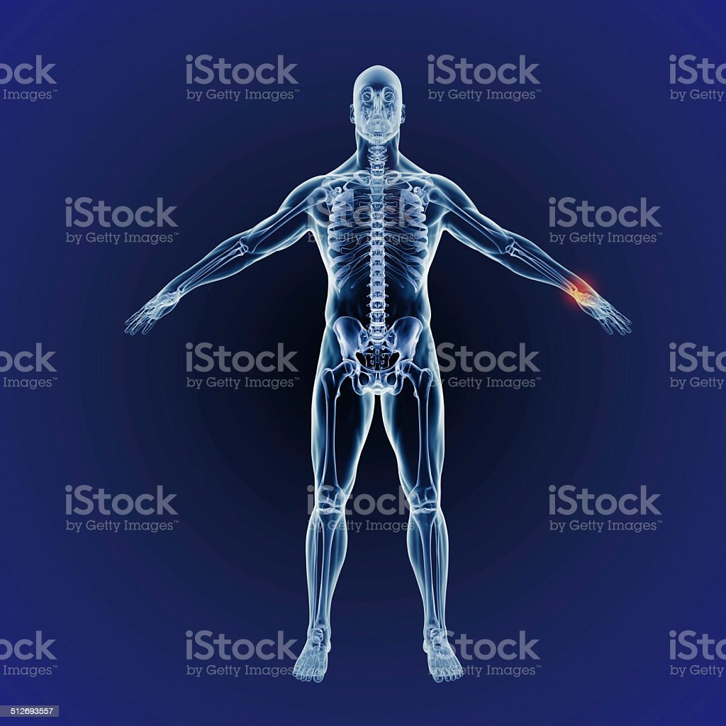 Scanning for injury stock photo