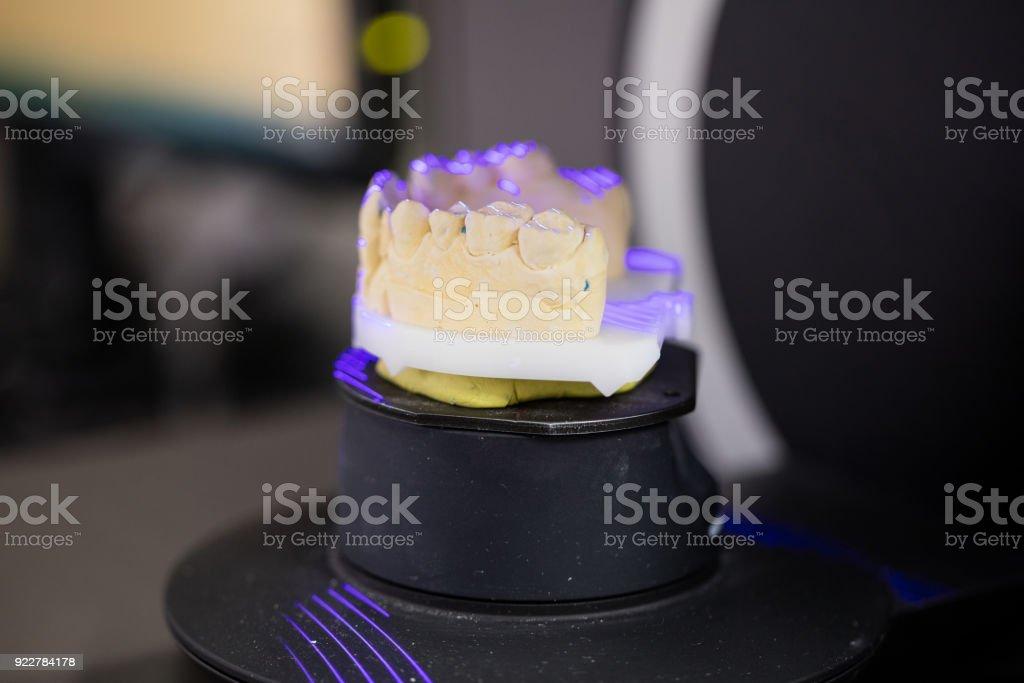 3d Scanning Of Denture Model Stock Photo Istock