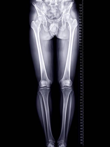 Scanogramm der unteren Extremität oder Röntgenbild der gesamten unteren Extremität mit Skala. – Foto