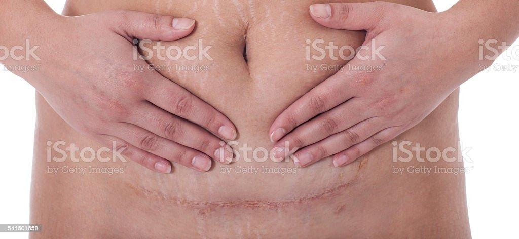 Scar after a Caesarean section, Bikini line stock photo