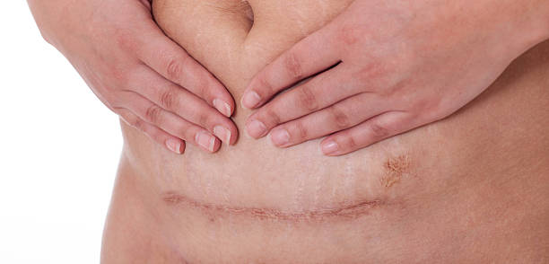 scar after a caesarean section, bikini line - c section stock photos and pictures