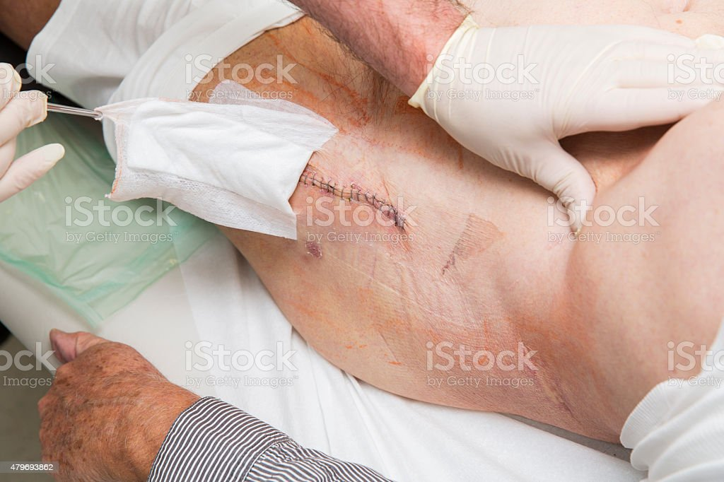 Scar after hip replacement,orthopaedic surgery stock photo
