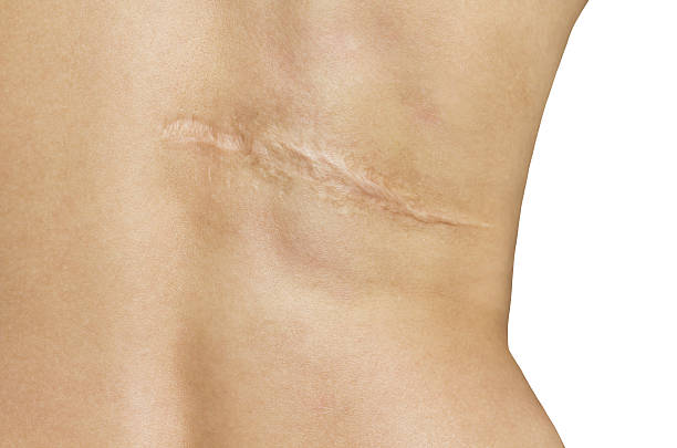 Scar after operation on back of women on white background stock photo