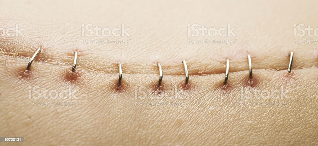 Scar and satures stock photo
