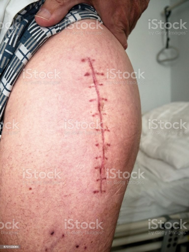 Scar following surgery of hip joint. Replacing of the devastated hip joint for the hip endoprosthesis stock photo