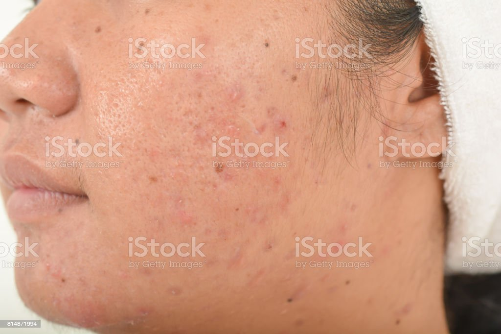 scar from acne on face stock photo