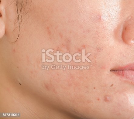 istock Scar from Acne on face 817319014