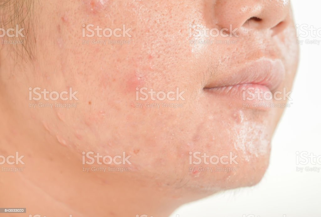 Scar From Acne On Face Stock Photo - Download Image Now - iStock