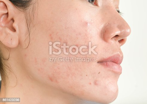 istock Scar from Acne on face 851423236