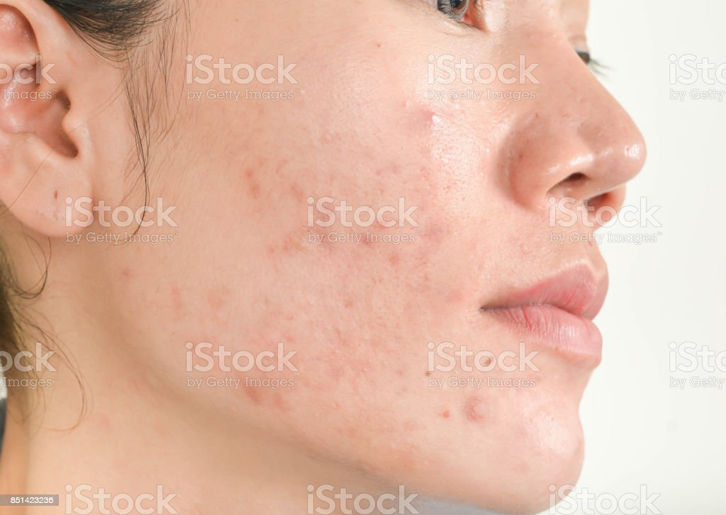 Scar from Acne on face - foto stock