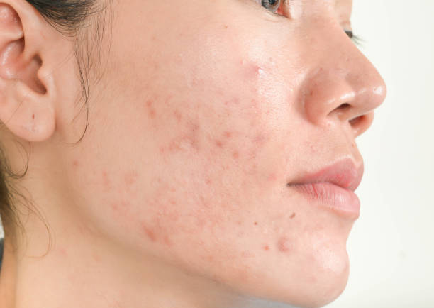 Scar from Acne on face Scar from Acne on face scar stock pictures, royalty-free photos & images