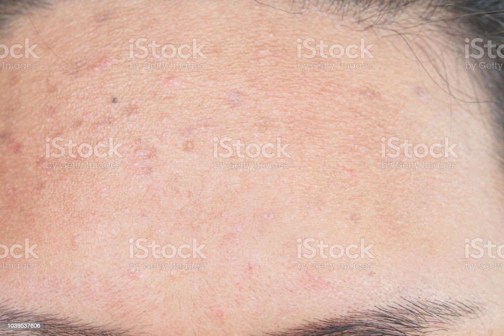 Scar from Acne on face Skin problems stock photo