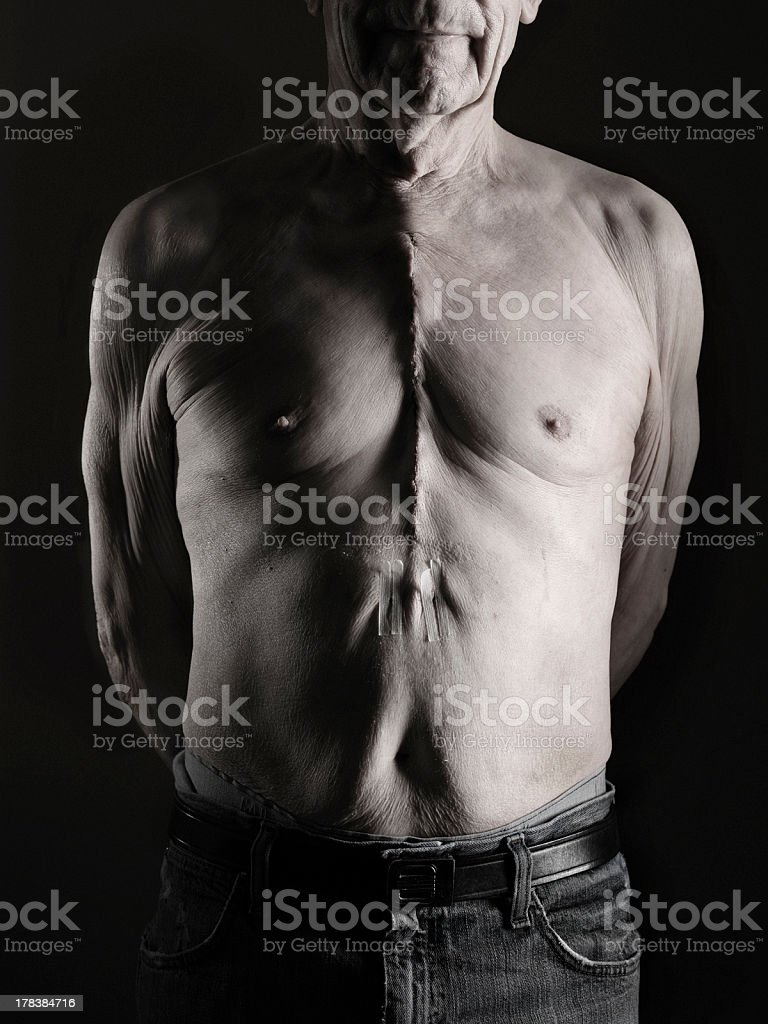 Scar from by-pass surgery stock photo