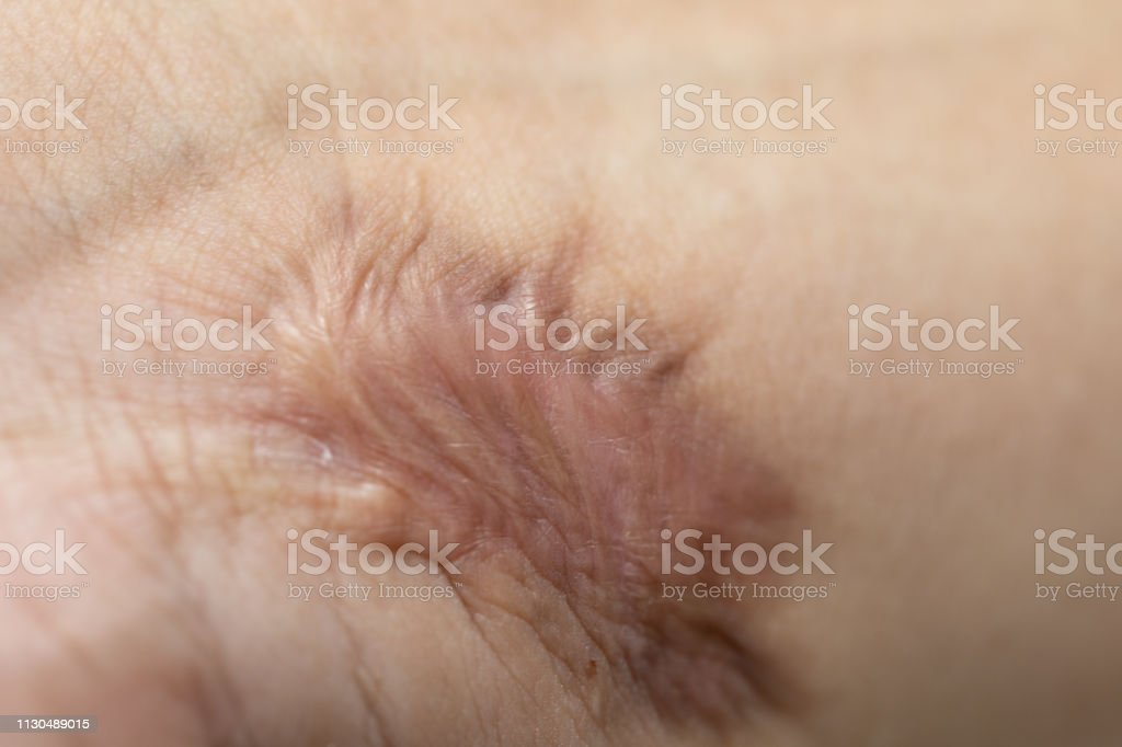 A scar is an area of fibrous tissue that replaces normal skin after an injury on skin. stock photo