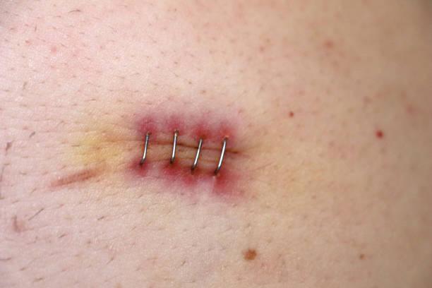 scar of an appendicitis operation stock photo