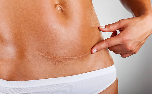 Scar of caesarean section Closeup of woman belly with a scar from a cesarean section scar stock pictures, royalty-free photos & images