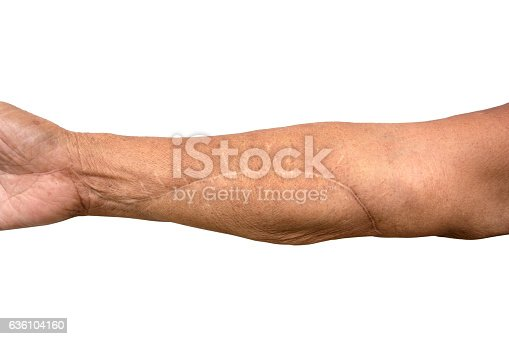 istock Scar On Arm after operation isolated on white background 636104160