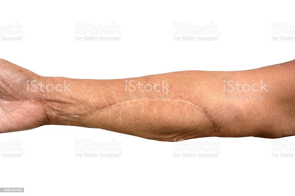 Scar On Arm after operation isolated on white background stock photo