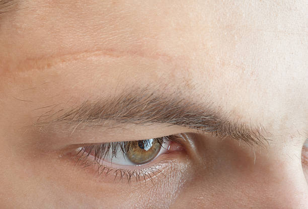 scar on forehead scar on forehead scar stock pictures, royalty-free photos & images