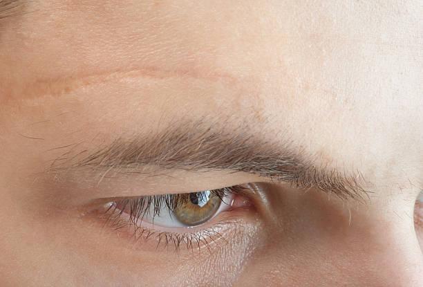 scar を額 ストックフォト
