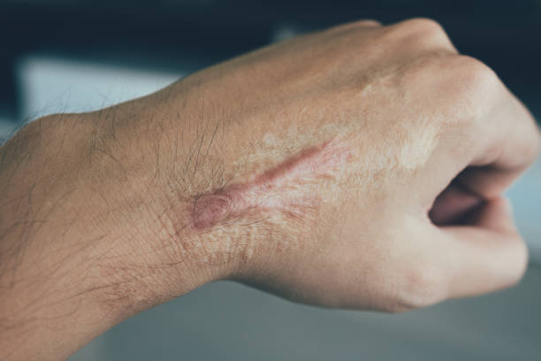 Scar on human skin keloid on hand. Scar on human skin keloid on hand. scar stock pictures, royalty-free photos & images