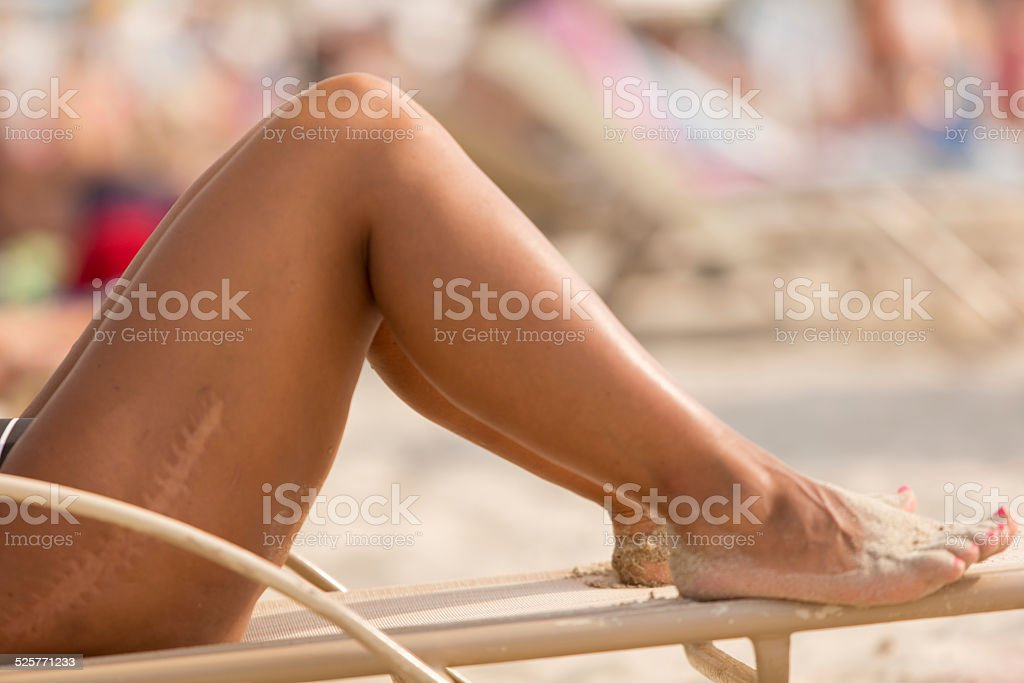 Scar on leg stock photo