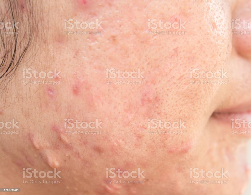 Scar on the face royalty-free stock photo
