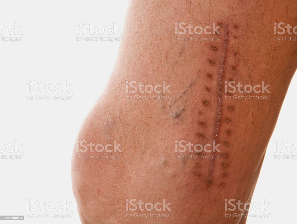 scar royalty-free stock photo