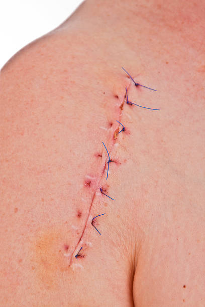 scar - shoulder surgery stock photos and pictures