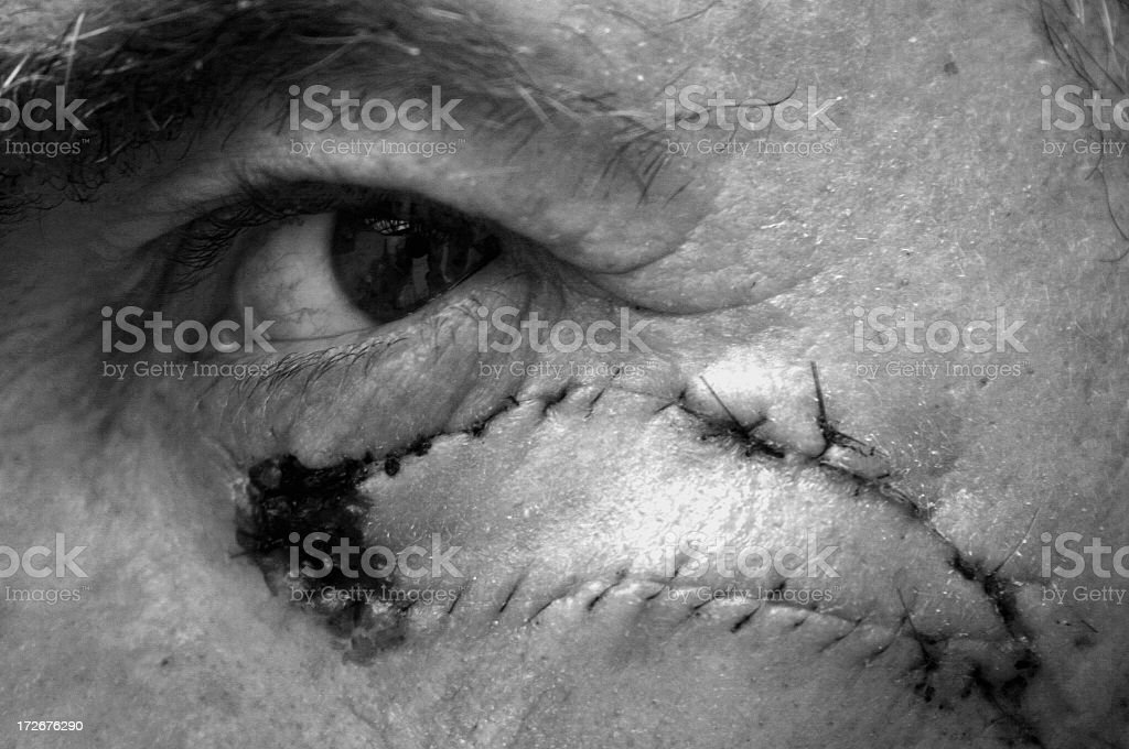 scar with sutures royalty-free stock photo