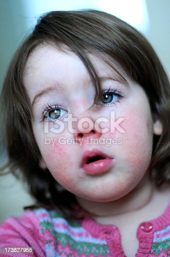 A two year old girl with scarlet fever. The rash usually appears first on the neck and face, often leaving a clear unaffected area around the mouth.
