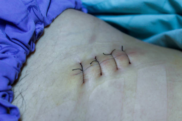 Scars appendectomy. stock photo