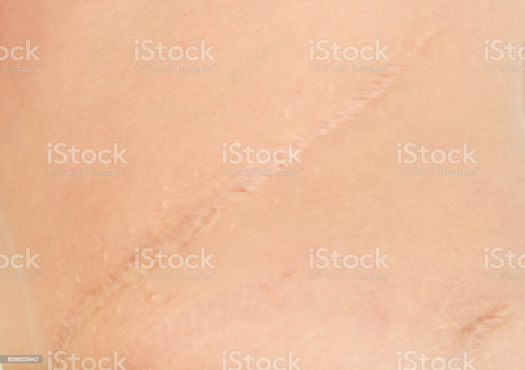 Scars in the body royalty-free stock photo