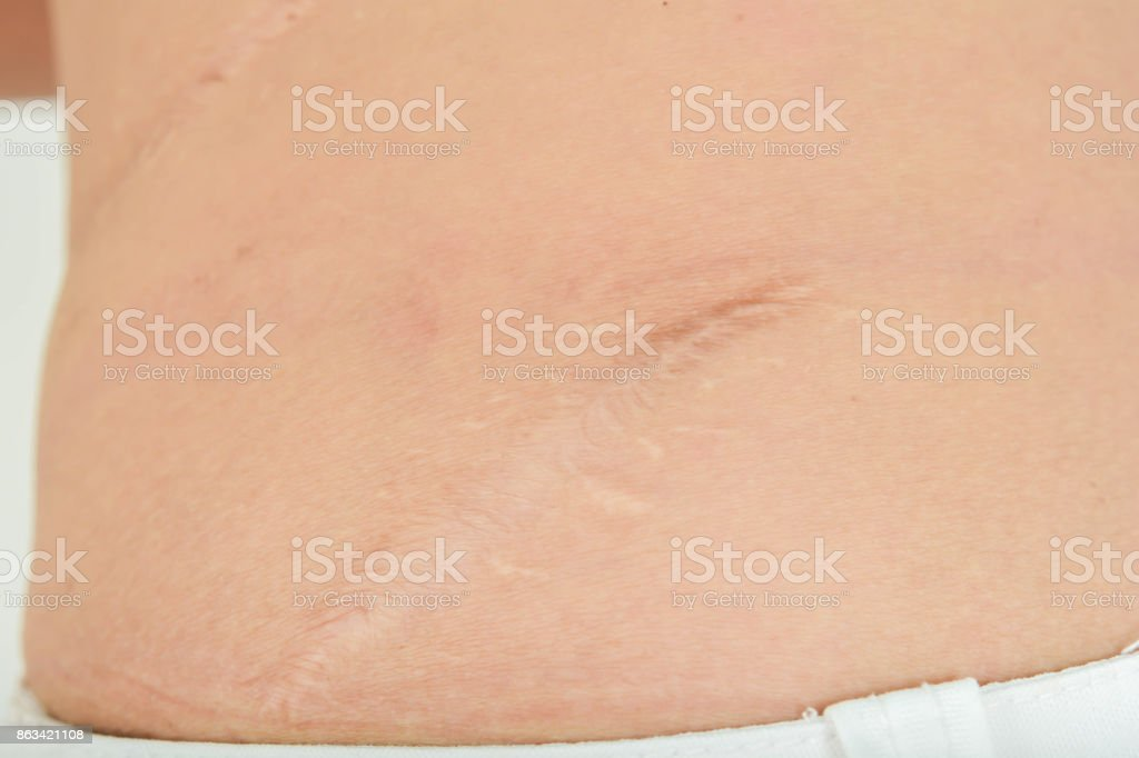 Scars in the body stock photo