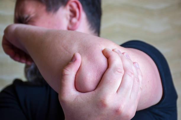 肘に痛みを強くのデモと肘上の前景に焦点を当てると痛みの顔をしかめるシーン。肘部管症候群、尺骨神経が絞扼、肘、あざや骨折の病気 - 四肢 ストックフォトと画像