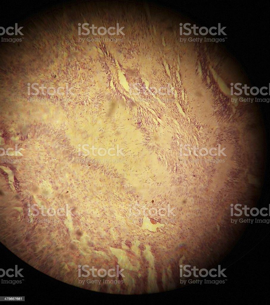Schwanomma - Brain Tumor stock photo