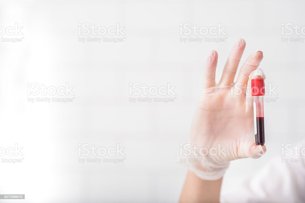 Scientist analyzing blood test tube royalty-free stock photo