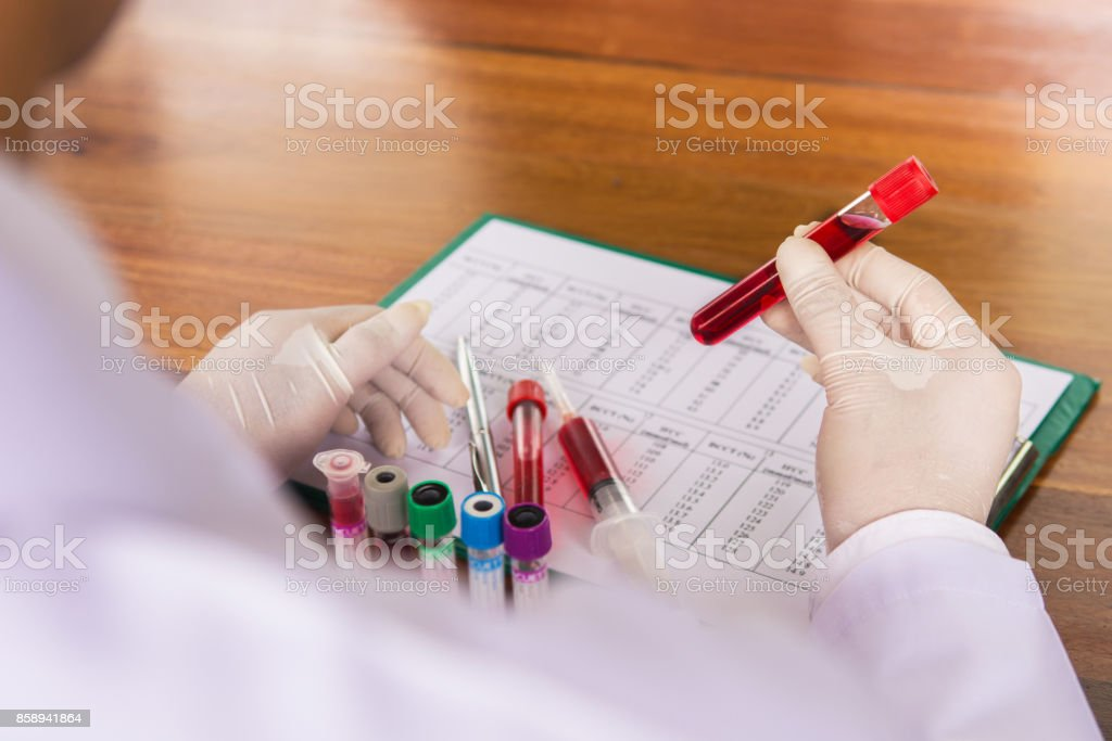 Scientist holding tube with blood sample making and test or research in clinical laboratory stock photo