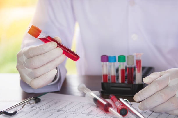 Scientist holding tube with blood sample stock photo