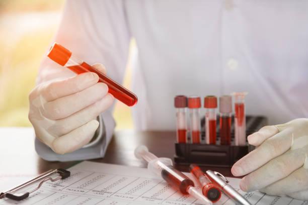 scientist holding tube with blood sample - ematologia foto e immagini stock