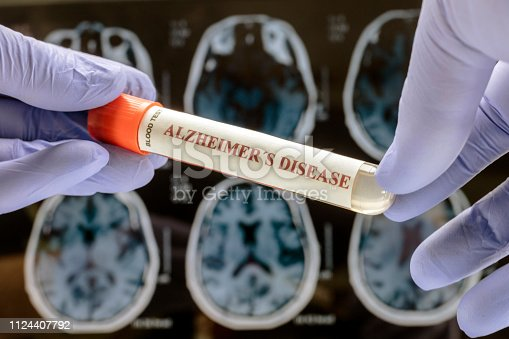 istock Scientist holds blood sample to investigate remedy against Alzheimer's disease, conceptual image 1124407792