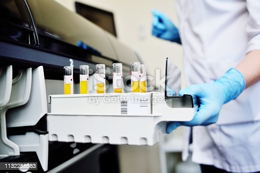 istock A scientist in a laboratory places test tubes with blood or urine in the container of a thermal analyzer 1132288583