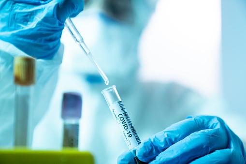 Wetenschapper Vrouw Werken In De Cdc Laboratorium Voor Covid19 Stockfoto en meer beelden van Alleen volwassenen
