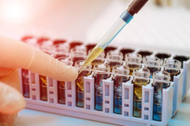 wissenschaftler arbeiten mit blutprobe im labor - dna test stock-fotos und bilder