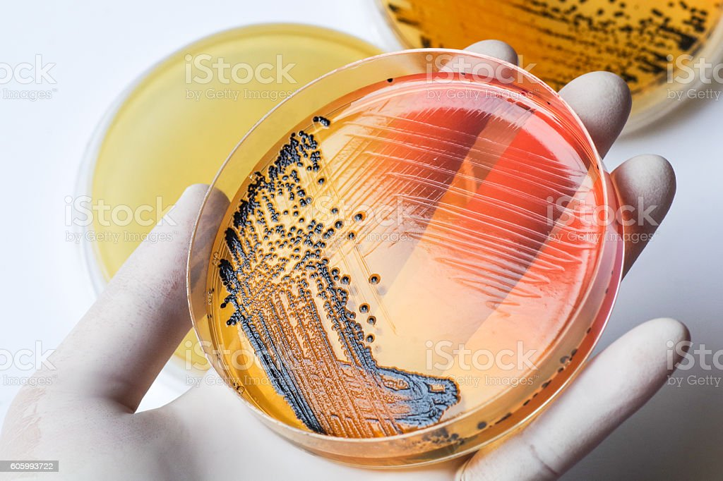 Scientist's hand in latex glove holding the bacteria growing pet stock photo