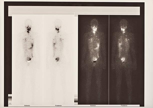 scintigraphy exame da tireóide e de cancro de pulmão - cancer da tireoide - fotografias e filmes do acervo