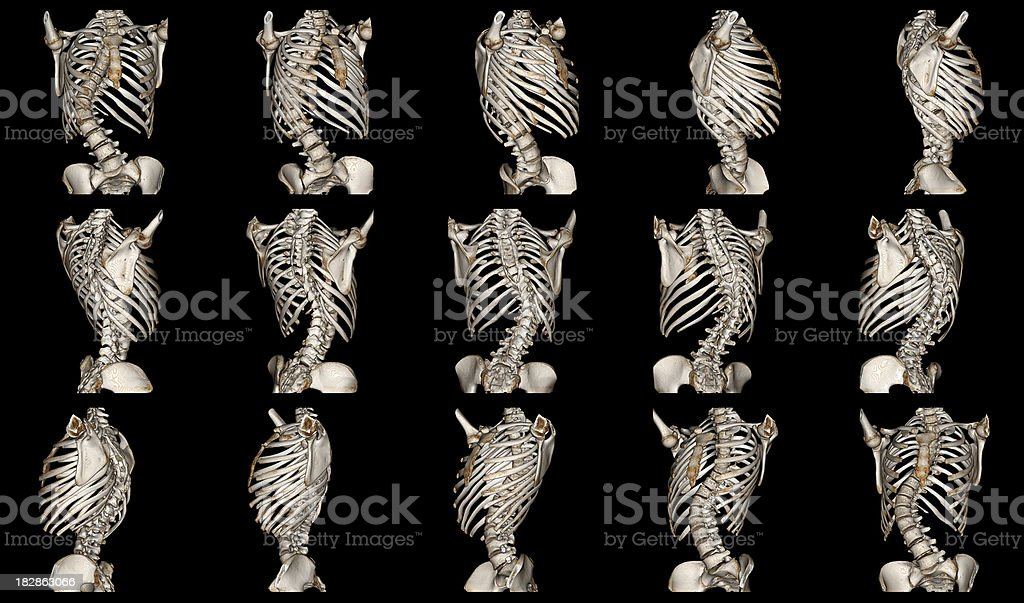 Scoliosis royalty-free stock photo